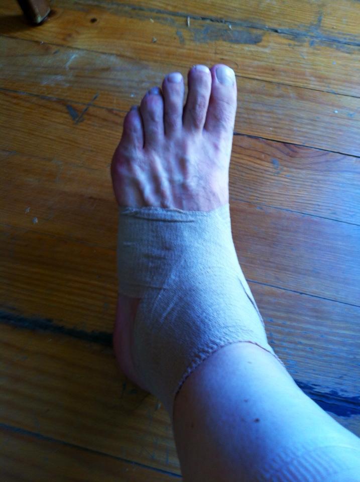 Alan's sprained ankle